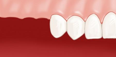 Absence d'une ou plusieurs dents