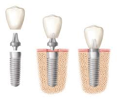 implant-dentaire-image21