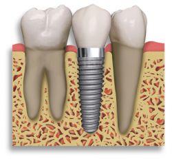 une-implant-dentaire